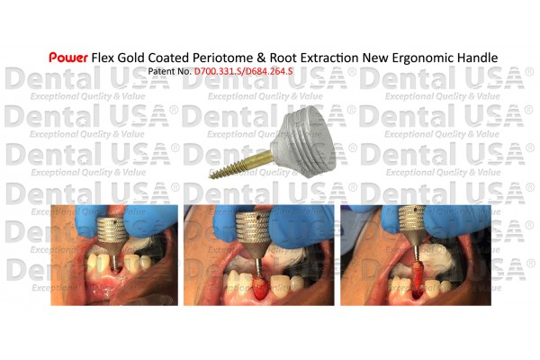 ROOT EXTRACTION HANDPIECE ANCHOR 30mm FLEX GOLD COATED