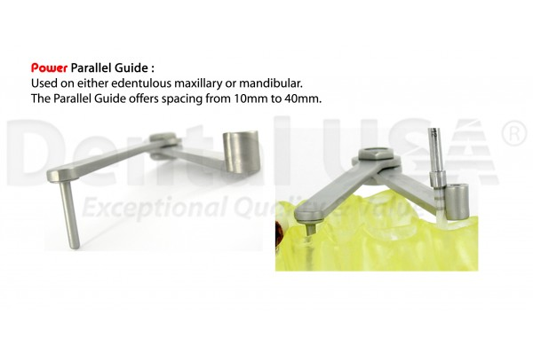 PARALLELING GUIDE Easy Alignment Of Implants In Edentulous Mandibles