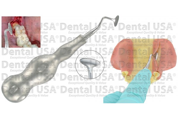 SURGICAL FLAP OPEN RETRACTORS LEFT WITH SERRATED